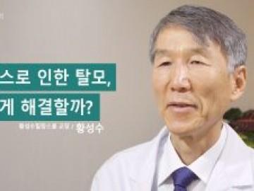 루푸스에 동반되는 탈모, 치료 어떻게 해야하나요?